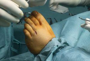 incision previa extracción